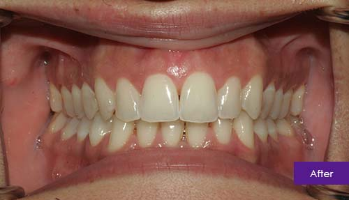 Invisalign and Teeth Whitening After 1