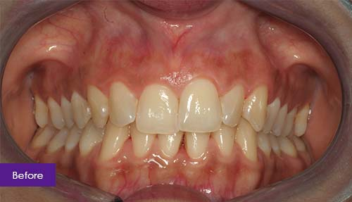 Invisalign and Teeth Whitening Before 1