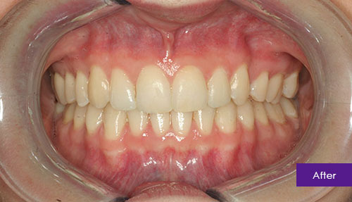 Invisalign After 1